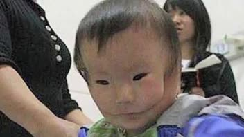 Medical Condition Makes Chinese Baby's Face Look Like A Mask