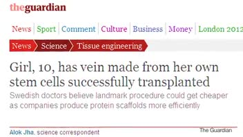 First Ever Vein Made From Girl's Own Stem Cells